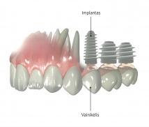 Implantacija_th